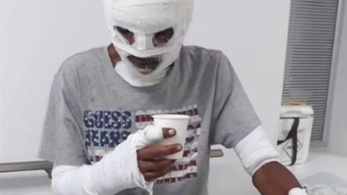 El joven se recupera en el hospital de sus quemaduras de tercer grado