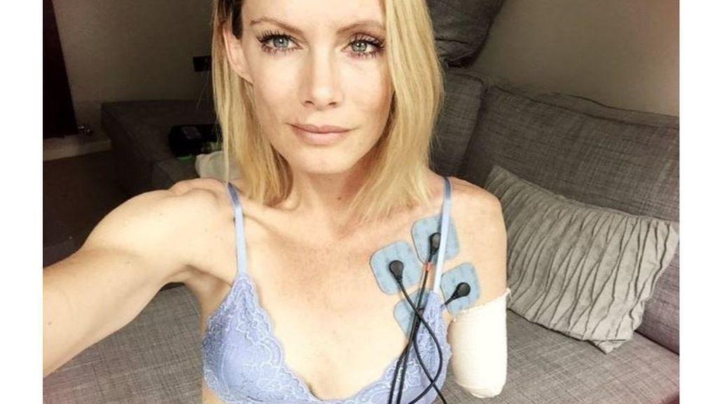 El drama de la especialista que perdió un brazo en un rodaje: el estudio no paga las facturas médicas