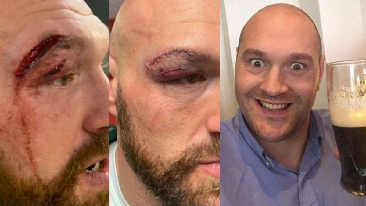 Tyson Fury recibe 47 puntos de sutura, se va al casino, gana 5.000 dólares y los gasta en cerveza