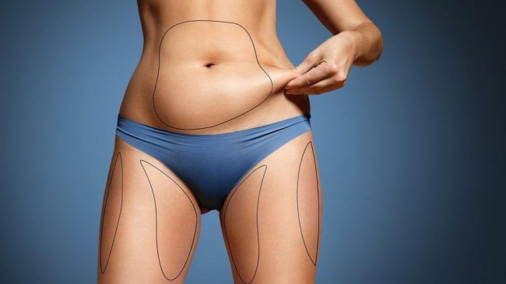 grsa-abdominal