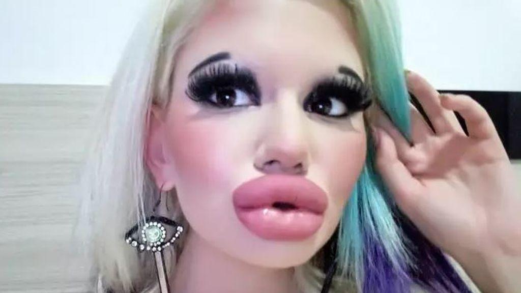 Una mujer triplica el tamaño de sus labios tras operarse quince veces