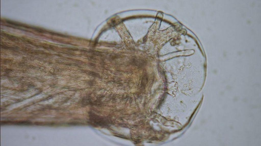 Investigadores mallorquines han detectado, por primera vez en Europa, un gusano que puede causar meningitis