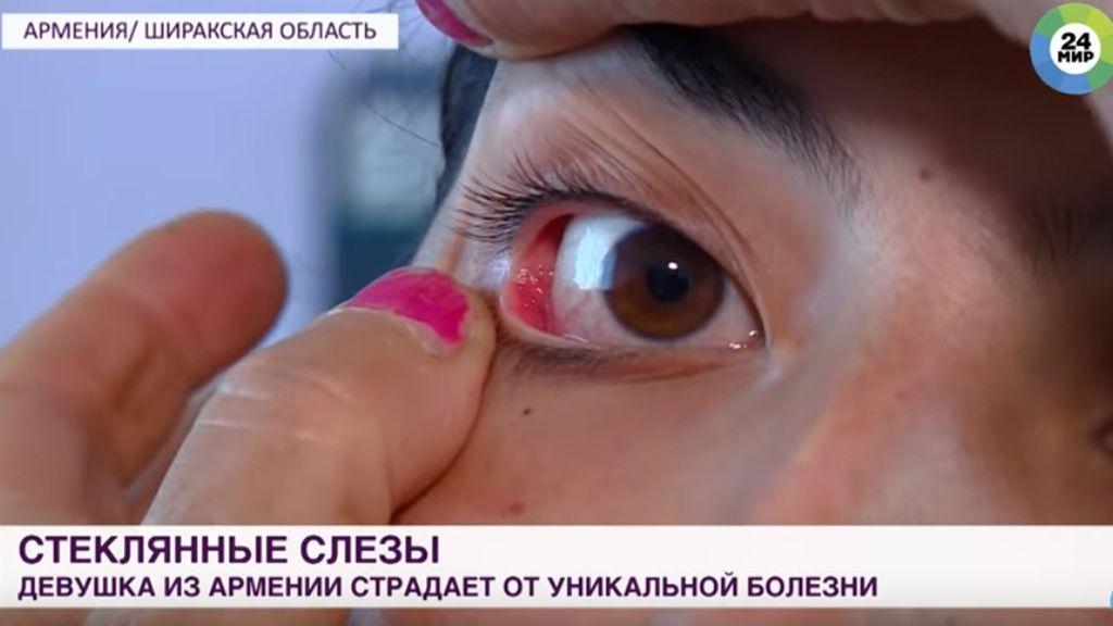 La enfermedad rara de una joven que los médicos no se explican: llora cristales en lugar de lágrimas