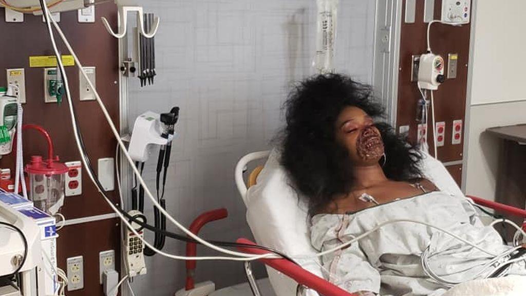 Una joven acaba en urgencias tras confundir a los médicos con su maquillaje de Halloween