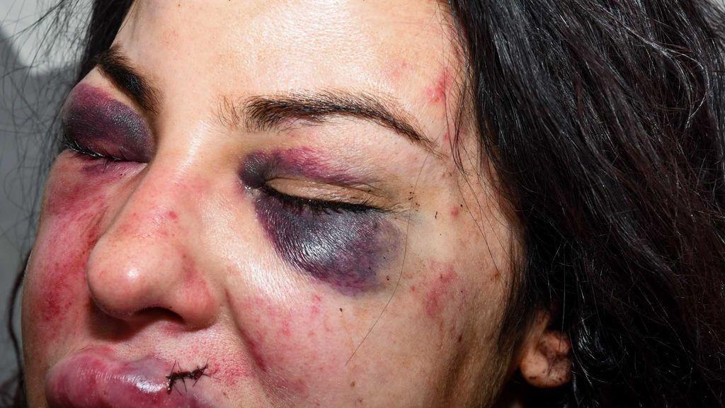 """""""¡Voy a matarte!"""": Emergencias graba las amenazas de su novio antes de apuñalarla"""