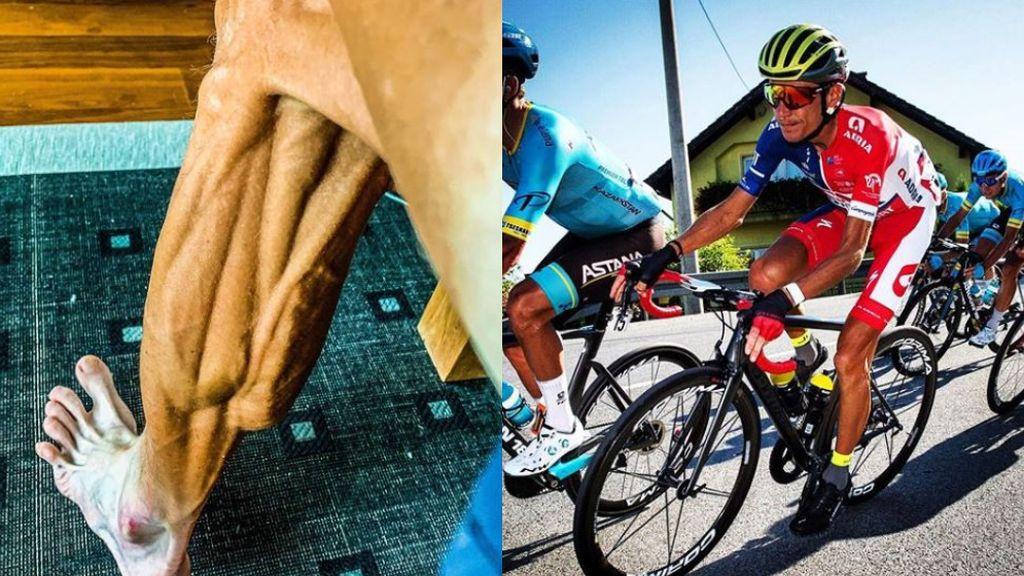 """El ciclista Janez Brajkovic publica el estado de su pierna tras una carrera que agita las redes: """"Para Halloween"""""""
