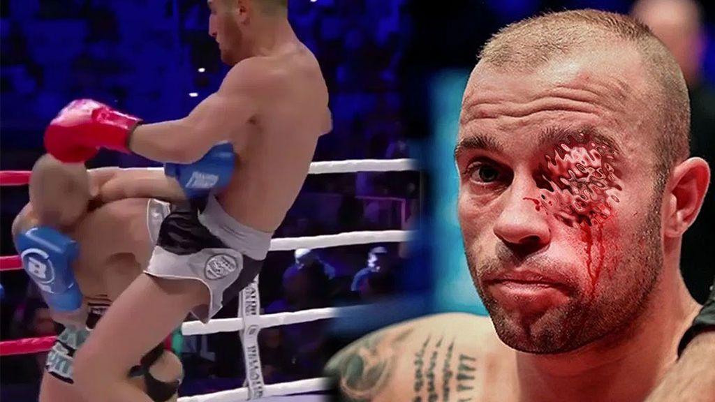 El terrible rodillazo que se llevó un luchador de kickboxing que hizo que el doctor terminara la pelea