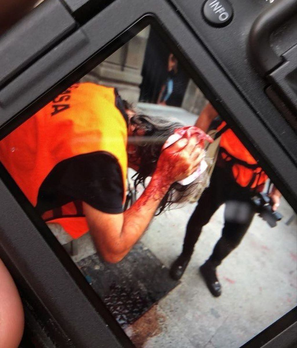 periodista herida