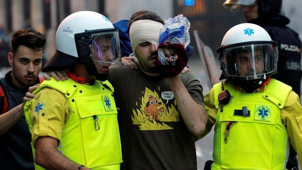 Dos personas pierden un ojo y otra se encuentra muy grave por un traumatismo tras los disturbios