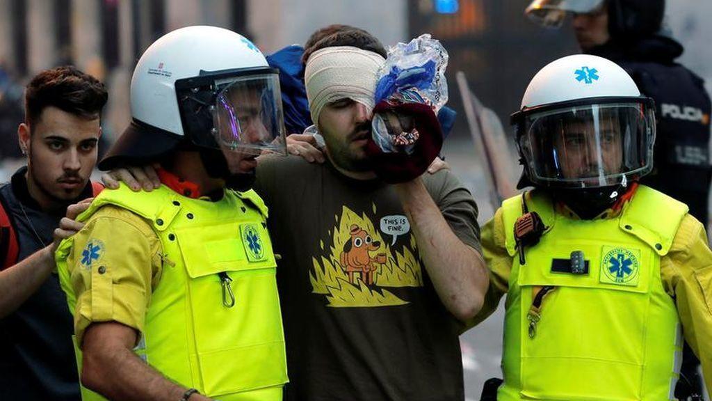 Cuatro personas han perdido un ojo en Barcelona por las protestas, tres de ellas están ingresadas