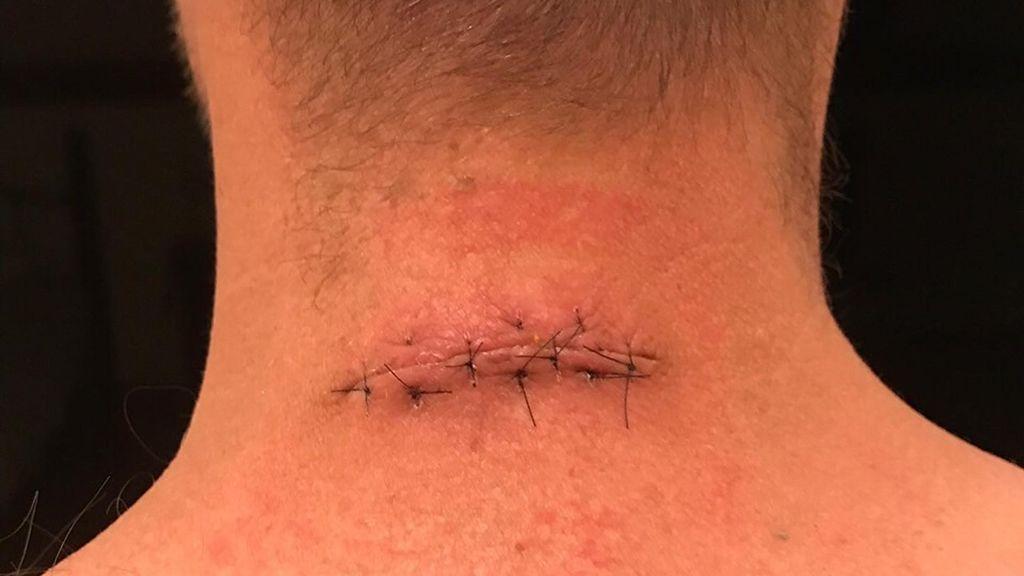 Pierde parte del cuello y espalda por un lunar y conciencia al mundo de los riesgo del melanoma