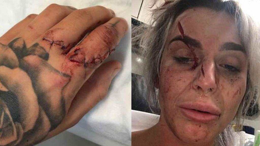 Muestra en Facebook  las huellas de un ataque a machetazos que sufrió en Bristol