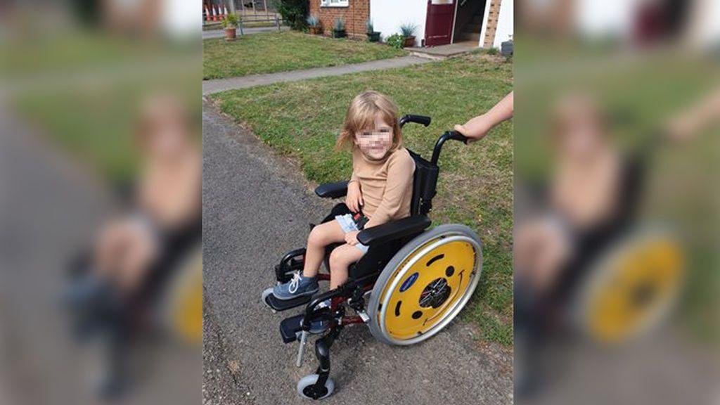 Un individuo reprocha haber nacido a una niña de cuatro años con una enfermedad rara