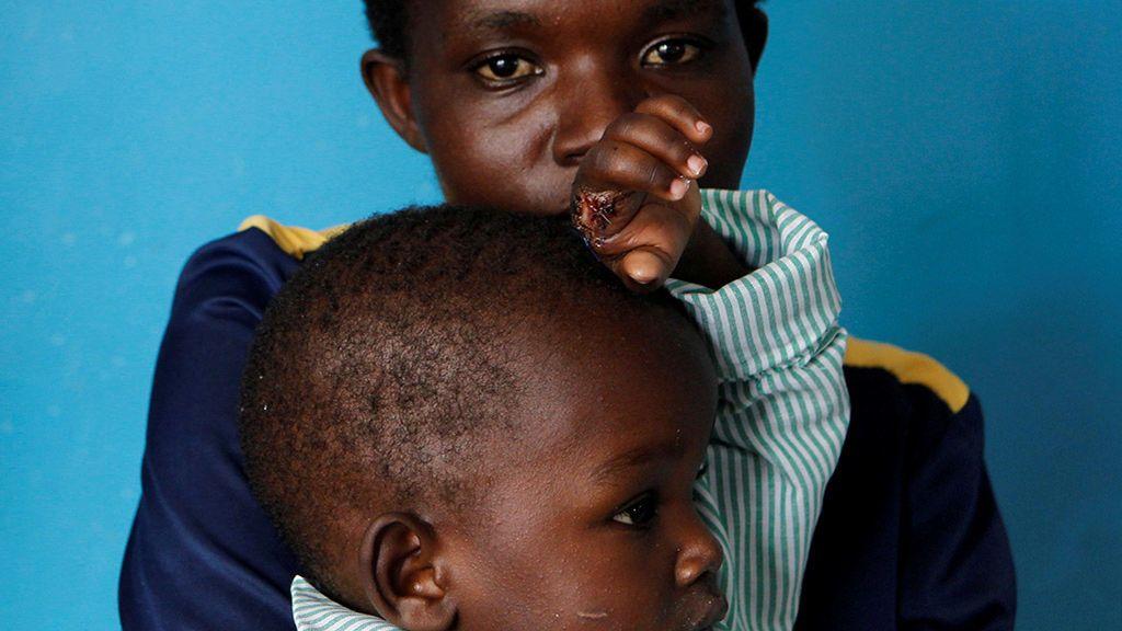 La lucha de Kenia por fabricar un antídoto contra las mordeduras de serpientes