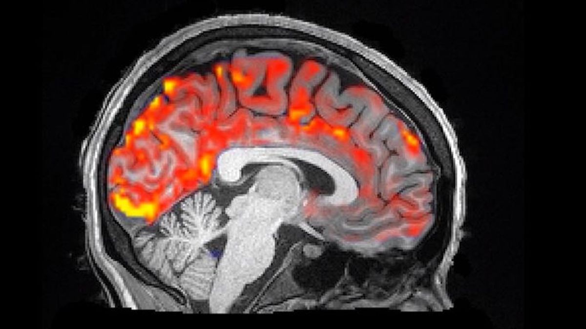 El cerebro se lava a si mismo mientras dormimos