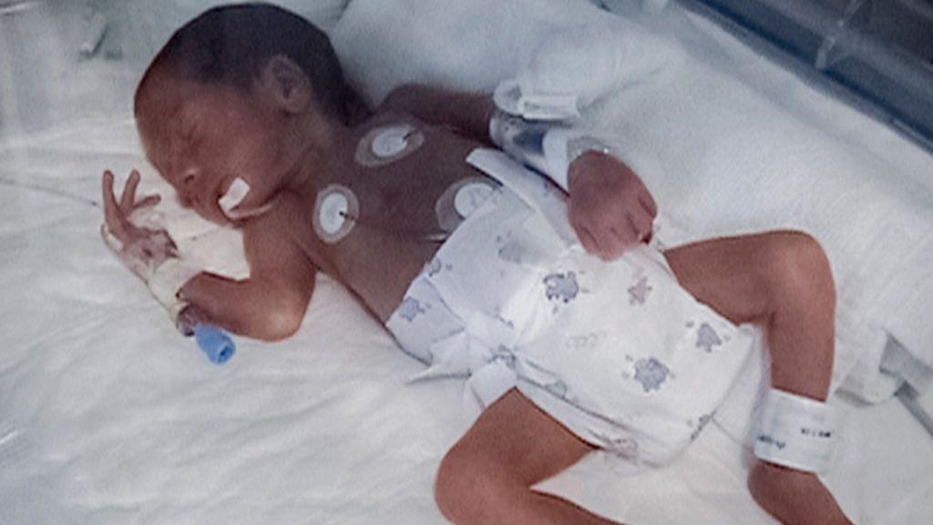 Fernando nació con poco más de un kilo de peso