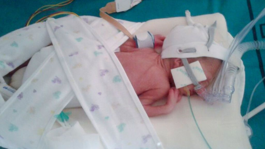 Teo nació en la semana 25 y pesó 830 gramos