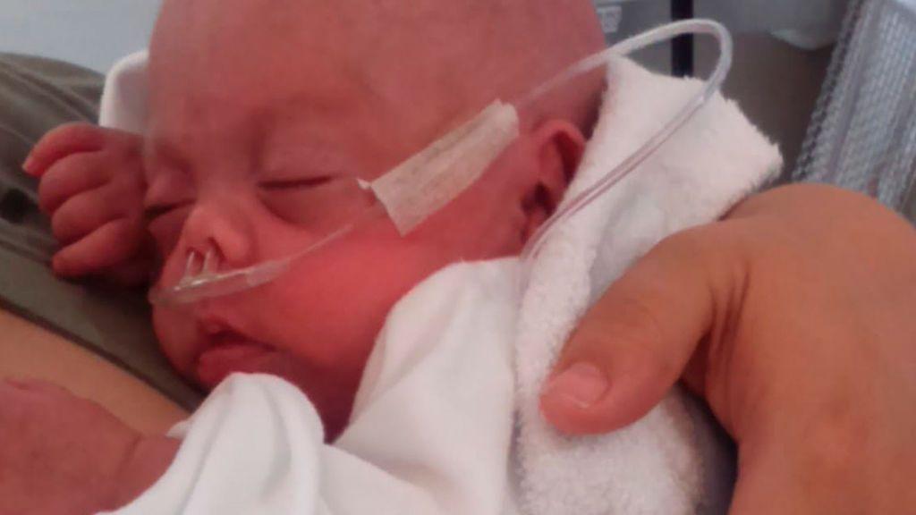 """Paquito, """"el niño milagro"""", pesó 500 gramos al nacer"""