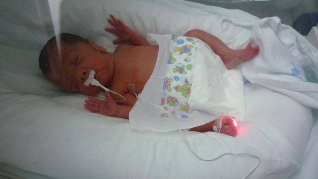 La lucha de los bebés prematuros