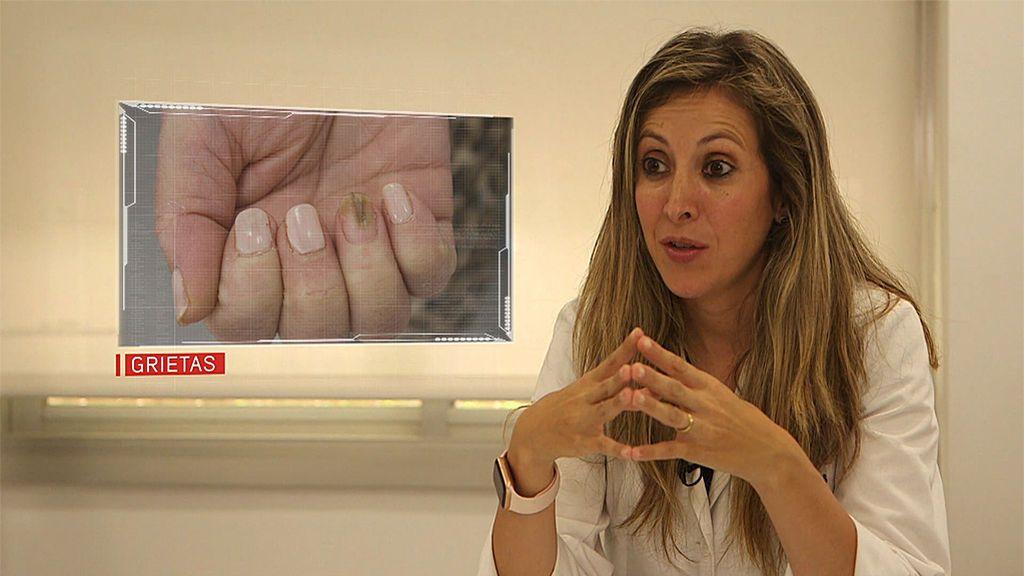 Una dermatóloga nos habla del riesgo de los esmaltes permanentes