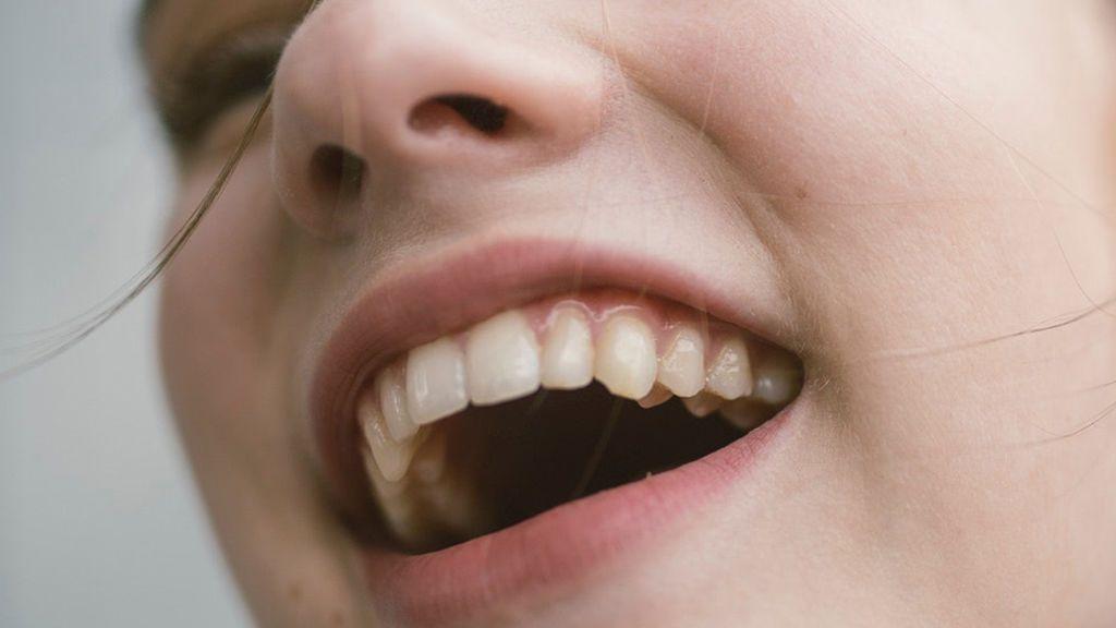 Qué hacer si se te cae un diente