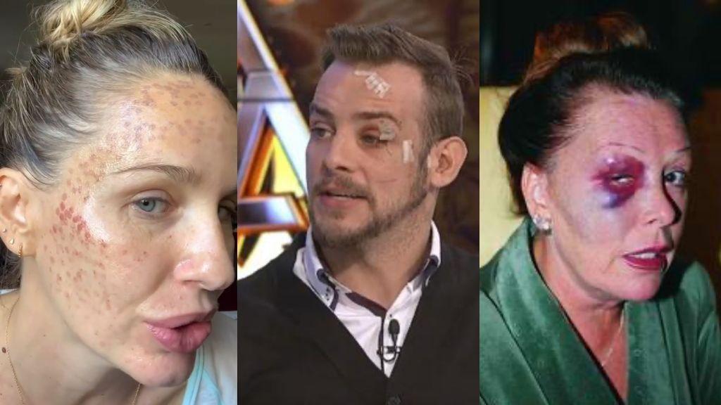 Accidentes, peleas, negligencias… Famosos que han acabado con el rostro desfigurado