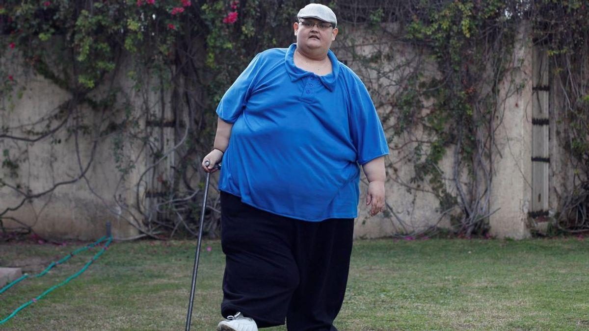El hombre más gordo del mundo, Juan Pedro Franco, pierde 334 kilos