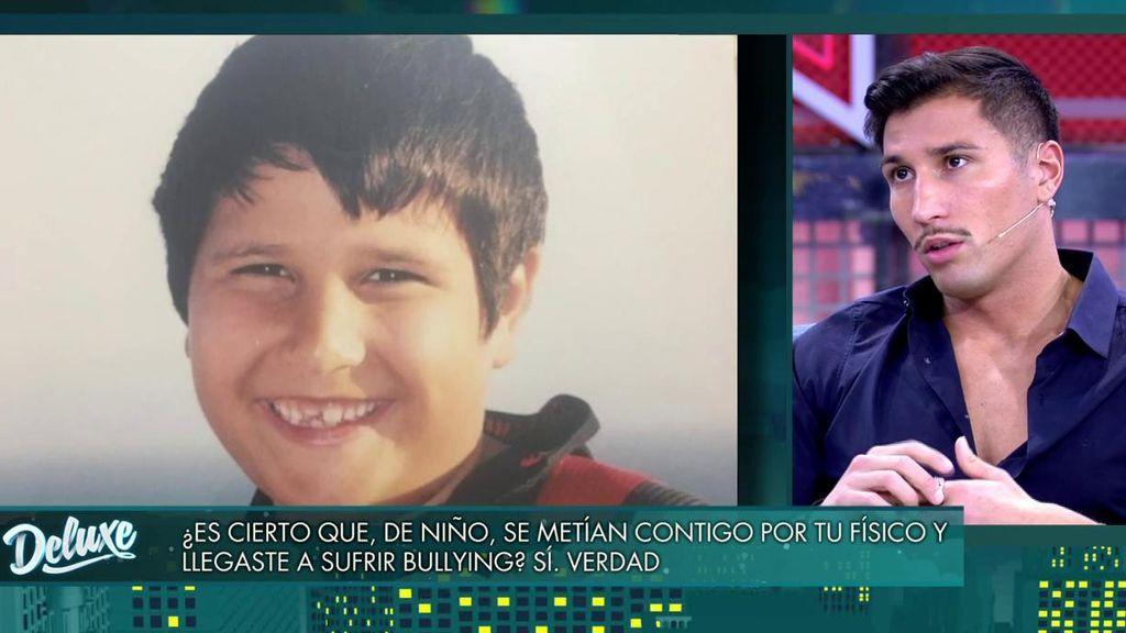 Gianmarco habla de la época en la que sufrió bullying