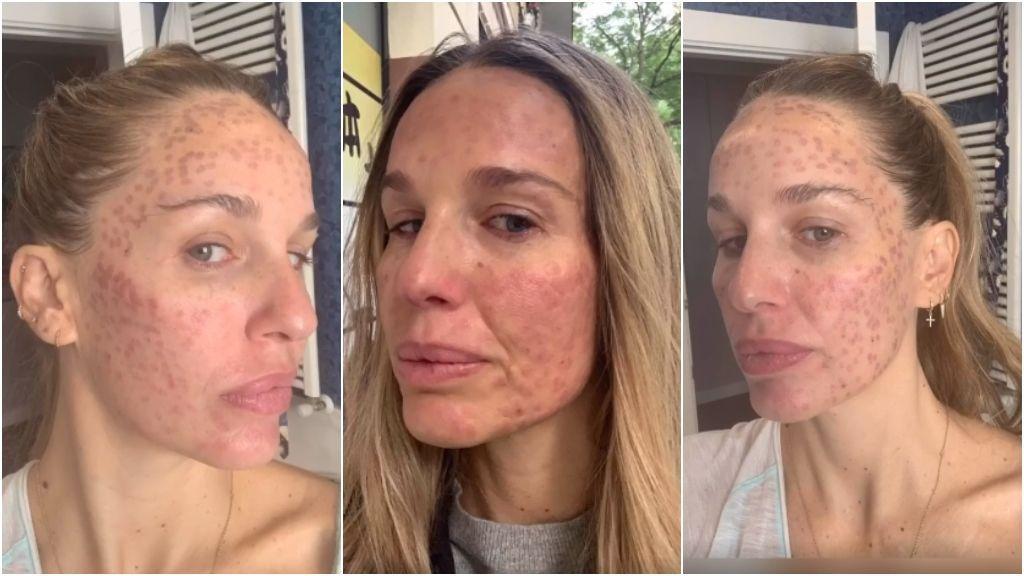 El drama de Carola Baleztena tras su intervención estética