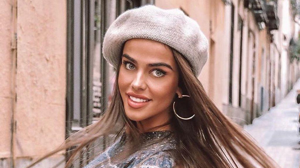 """Violeta Mangriñán se sincera: """"Se me cae el pelo a bolas, tengo hasta calvas"""""""