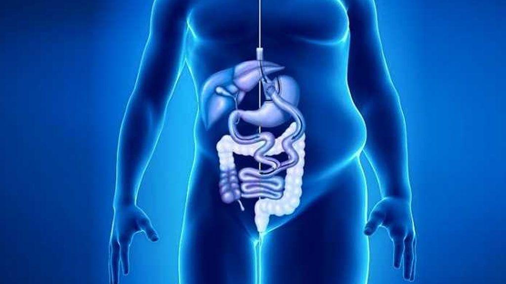 La cirugía de pérdida de peso aumenta el riesgo de cáncer colorrectal, según un estudio