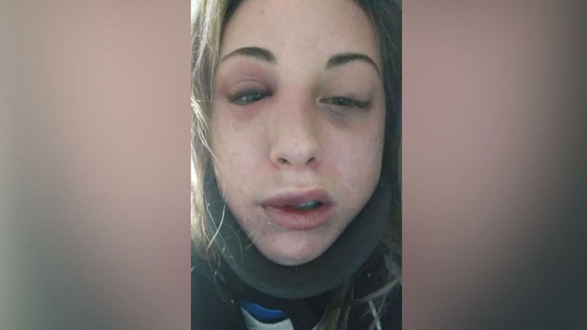 """""""Así me ha dejado al divertirse"""": las palabras de una joven en las redes tras recibir una paliza"""