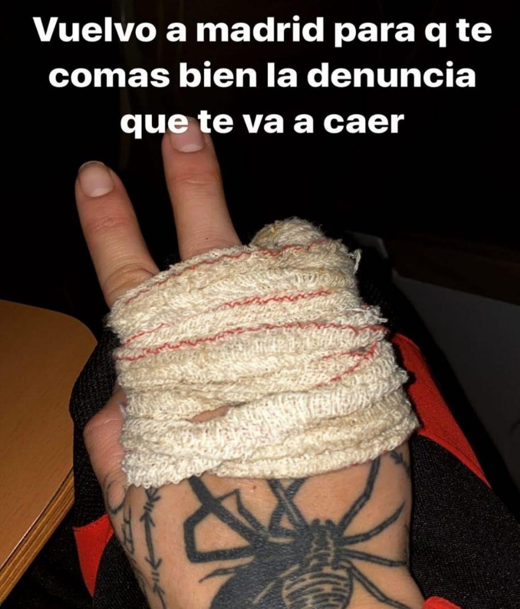 Valeria Quer con la mano vendada