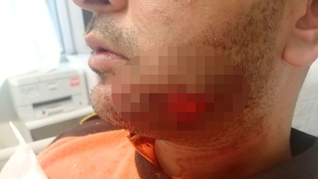 Atacan a mordiscos a un vigilante de seguridad en el Metro de Barcelona