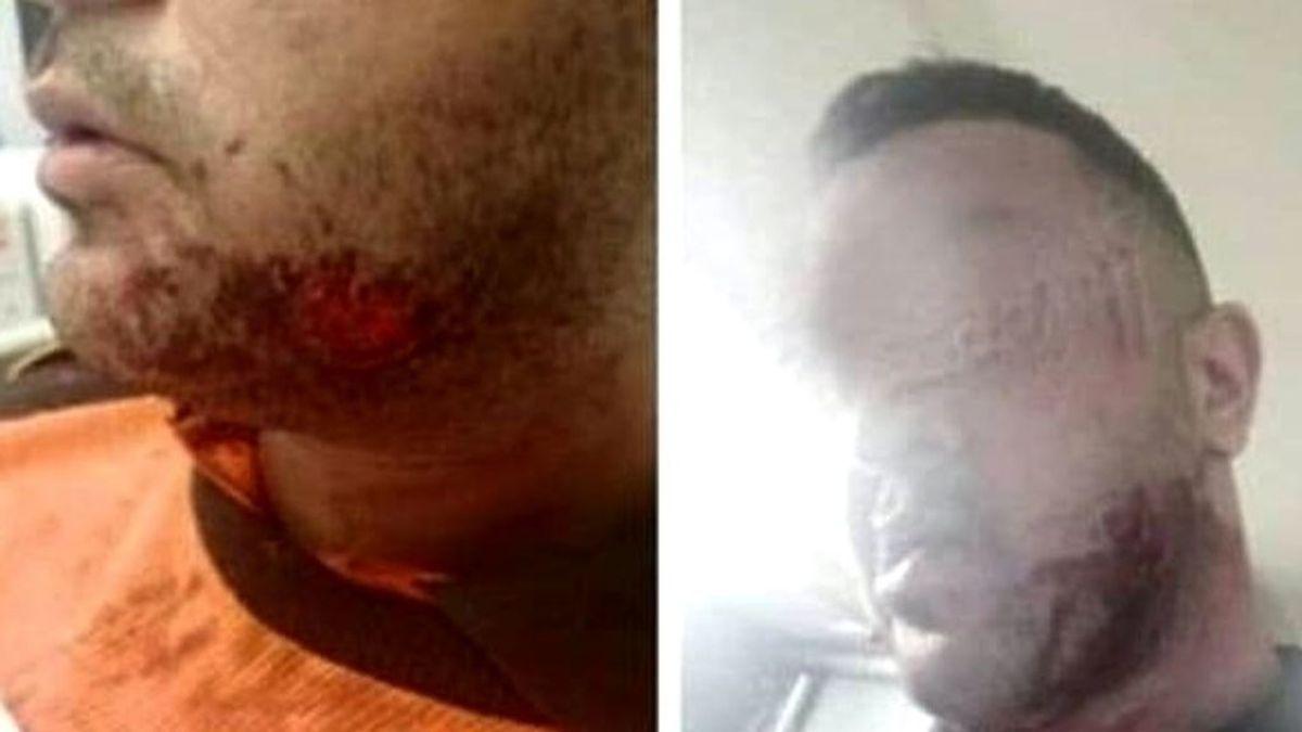 Detenido por morder a un vigilante de seguridad del Metro de Barcelona en la cara y en el cuello