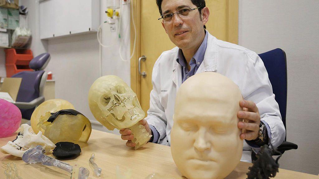 """Pedro Martínez Seijas, cirujano maxilofacial: """"Las prótesis 3D son como un traje a medida"""""""