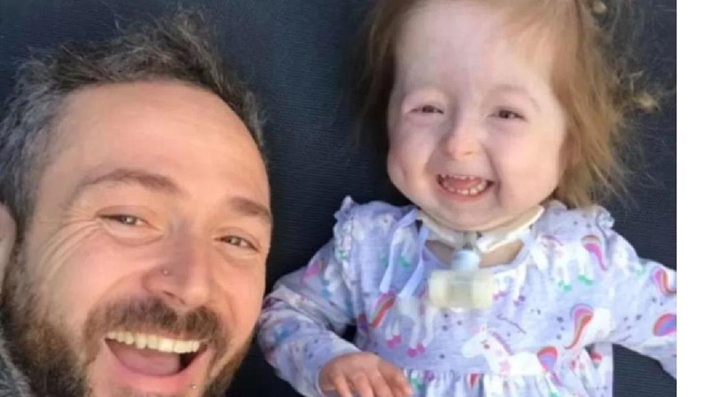 'La enfermedad de Benjamin Button': la única niña en el mundo que sufre un rápido envejecimiento de sus células