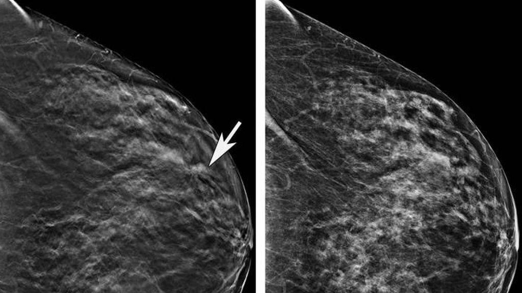 Nanopartículas 'inteligentes' con GPS: así es la nueva patente contra el cáncer de mama de la Universidad de Granada
