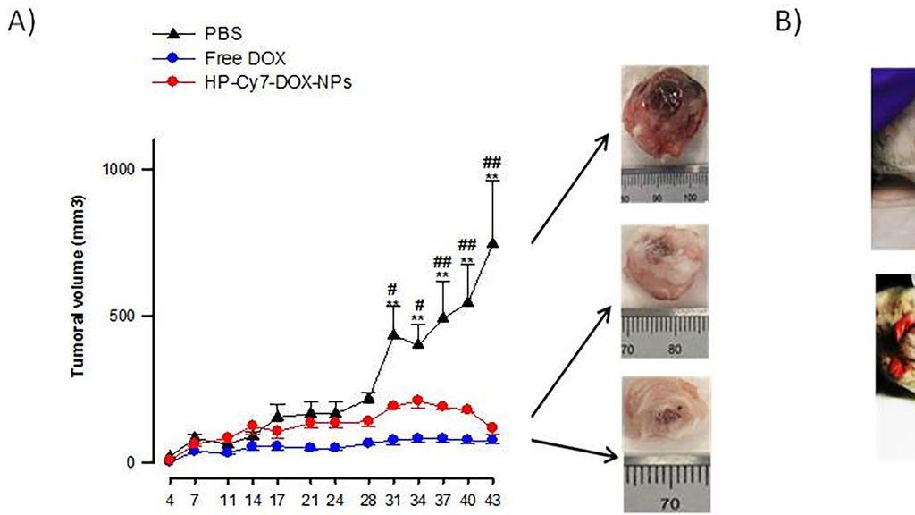 nanoparticulas grafica