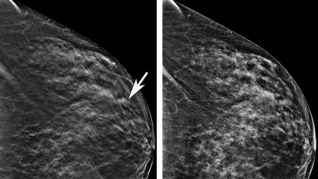 mamografia portada
