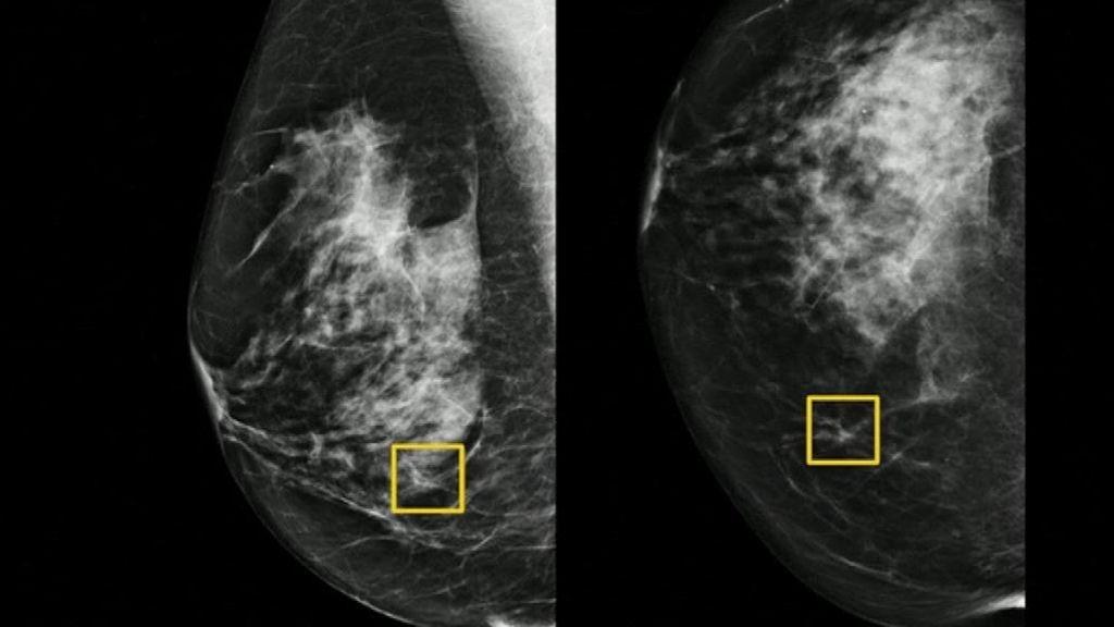 Un sistema de inteligencia artificial podría mejorar la detección del cáncer de mama