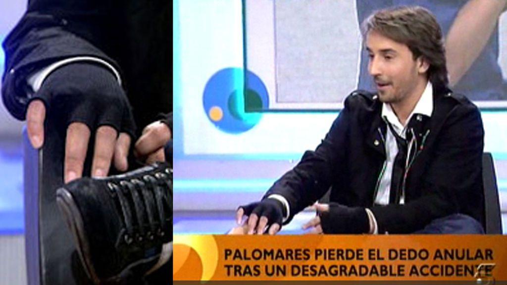 Javier Palomares perdió su dedo anular en un accidente