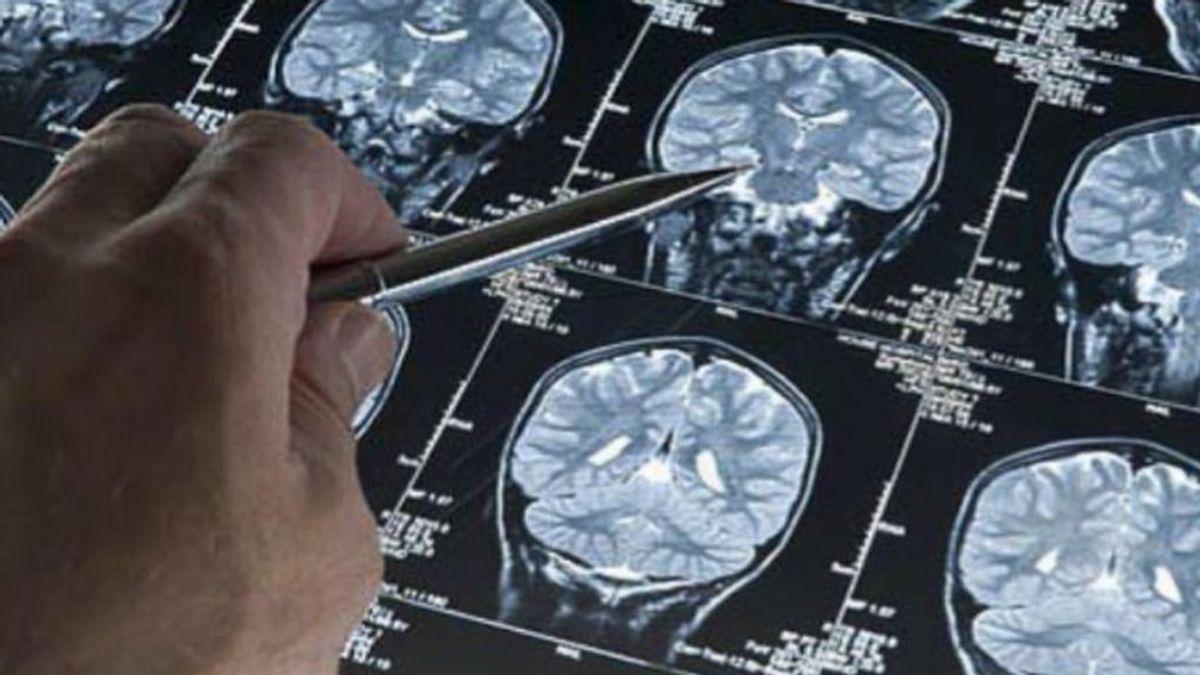 Desvelan el plan nacional contra el Alzheimer que prepara el Gobierno