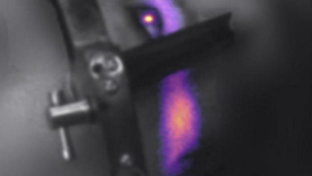 Descubren un nuevo método que explica por qué los pacientes de radioterapia ven destellos durante el proceso