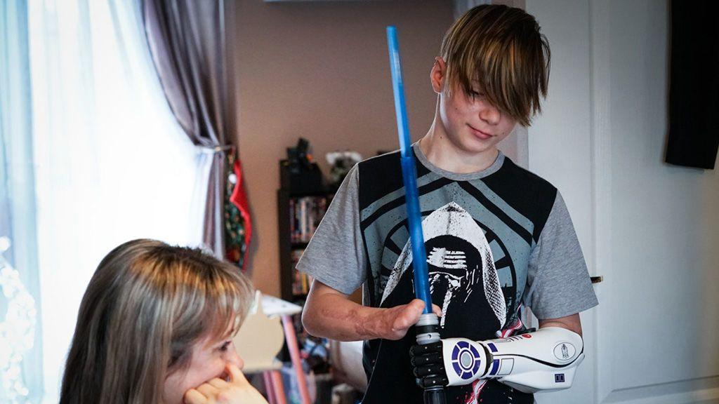 El brazo biónico de R2-D2