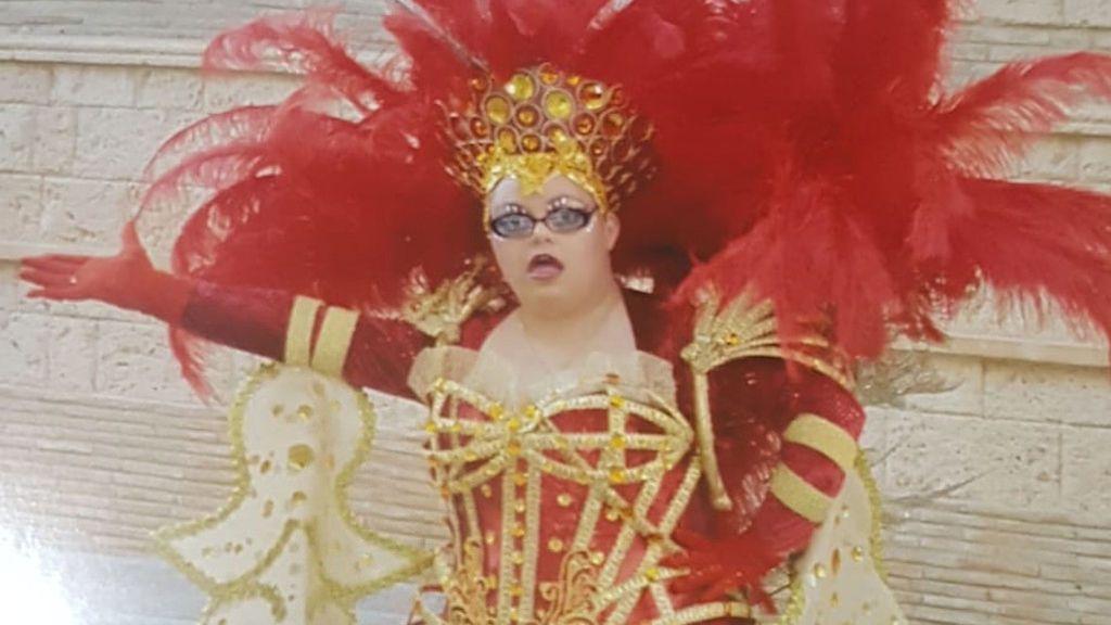 La primera mujer con síndrome de Down en ser Musa de los carnavales