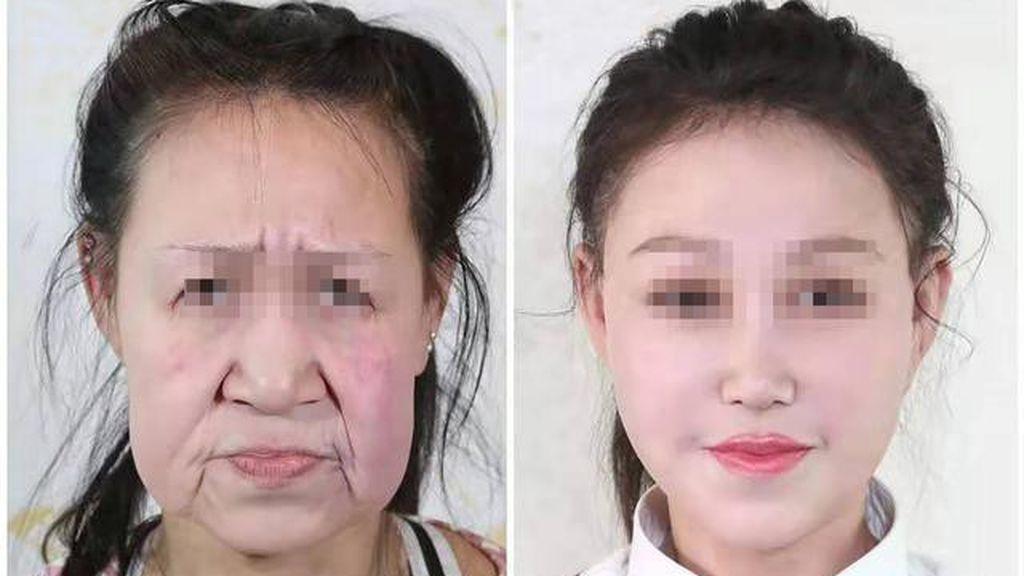 Una adolescente china, con apariencia de anciana, se somete a una cirugía para conseguir un nuevo rostro