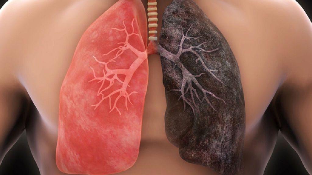 Los pulmones se regeneran si dejas de fumar