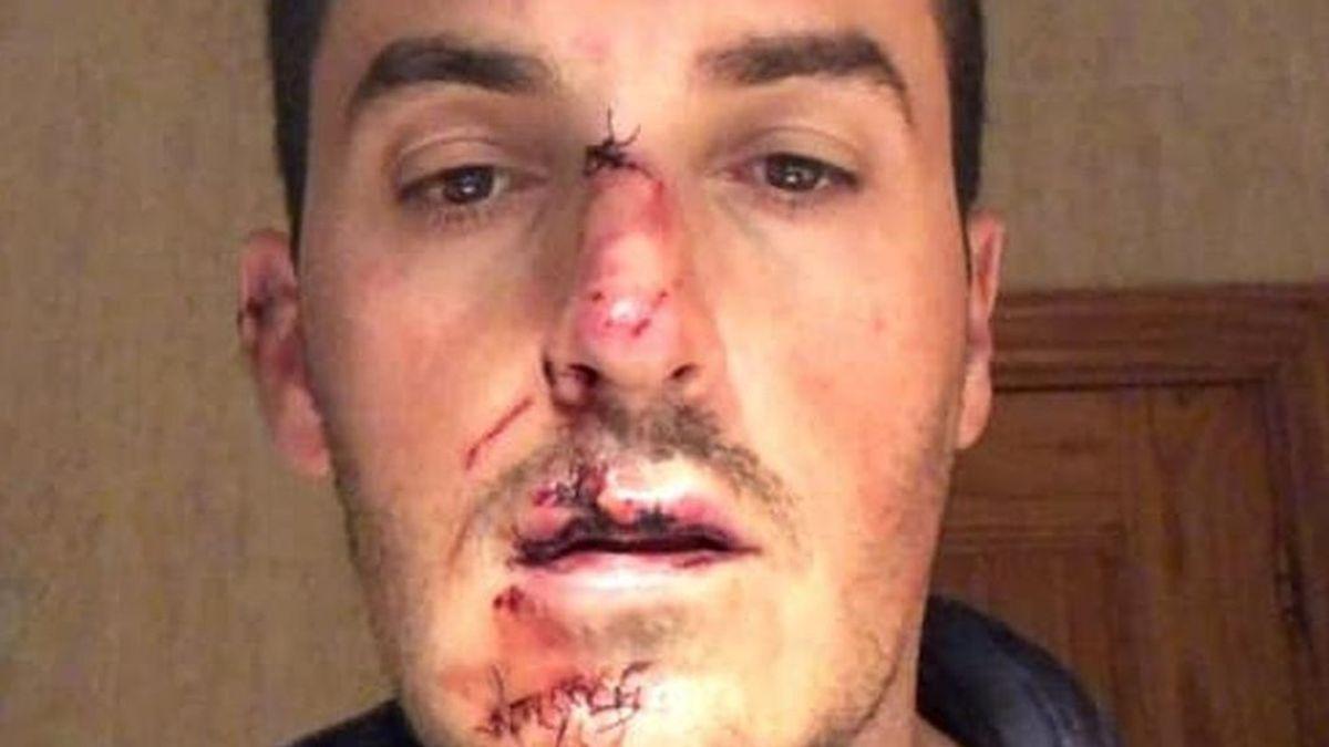 La Guardia Civil localiza al conductor que atropelló a un ciclista en Granada y se dio a la fuga