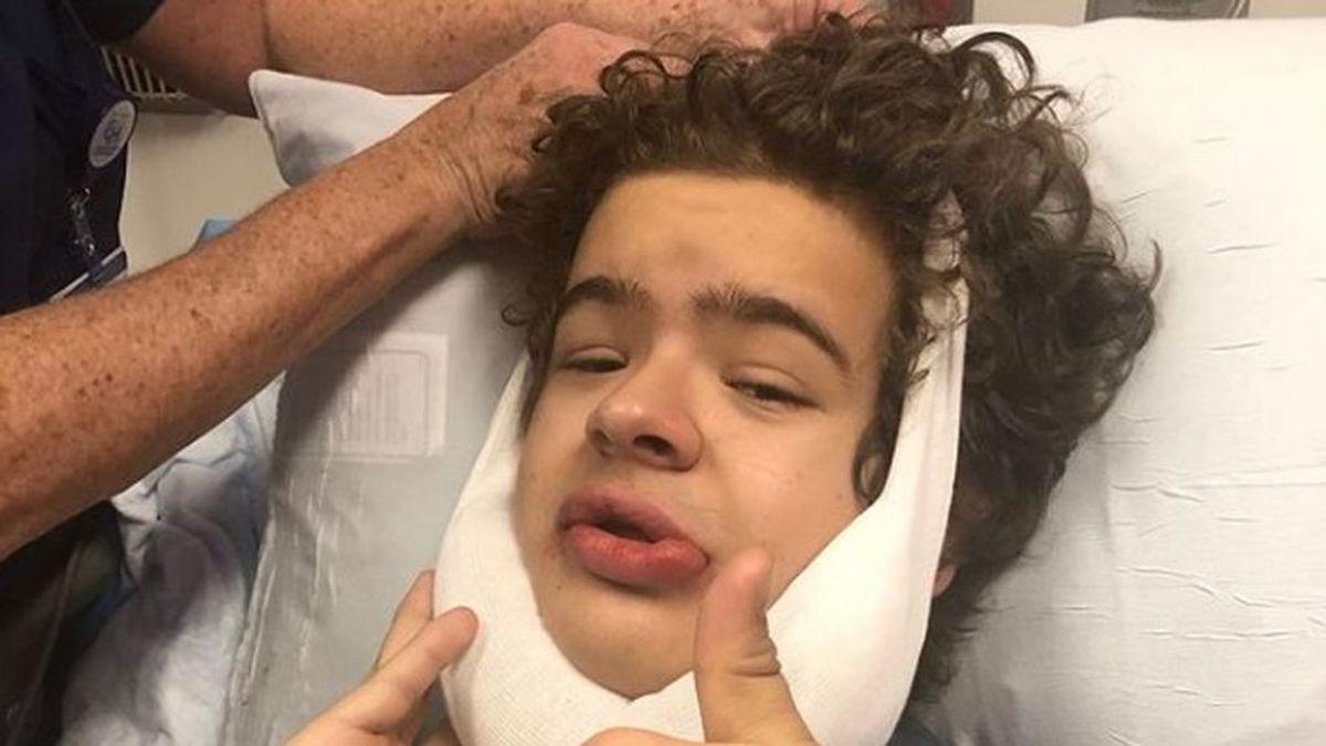 El actor de 'Stranger Things' Gaten Matarazzo se someta a una cuarta operación relacionada con su displasia cleidocraneal